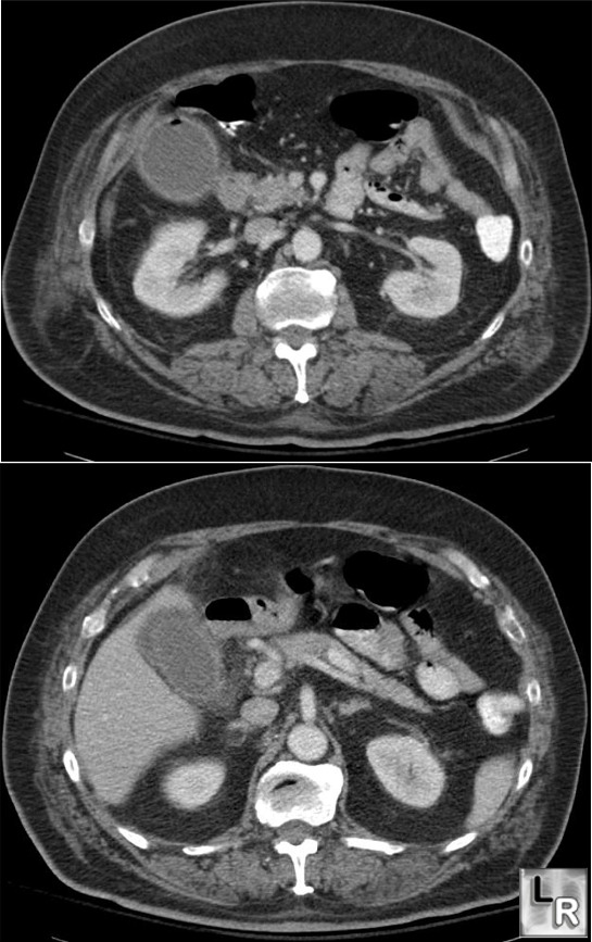 Learningradiology Com Emphysematous Cholecystitis Gas