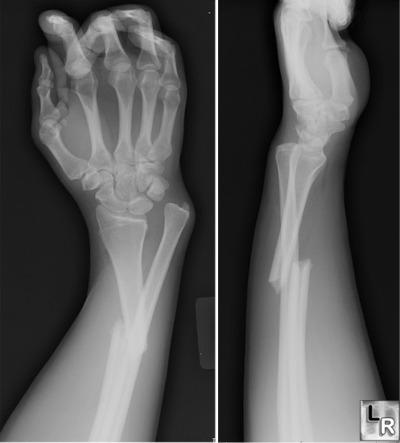 شكستگي استخوانها - فیزیوتراپیست وحید صادقی