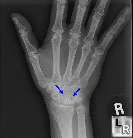 Learning Radiology - Avascular, Necrosis, Lunate, avn, Kienbock ...
