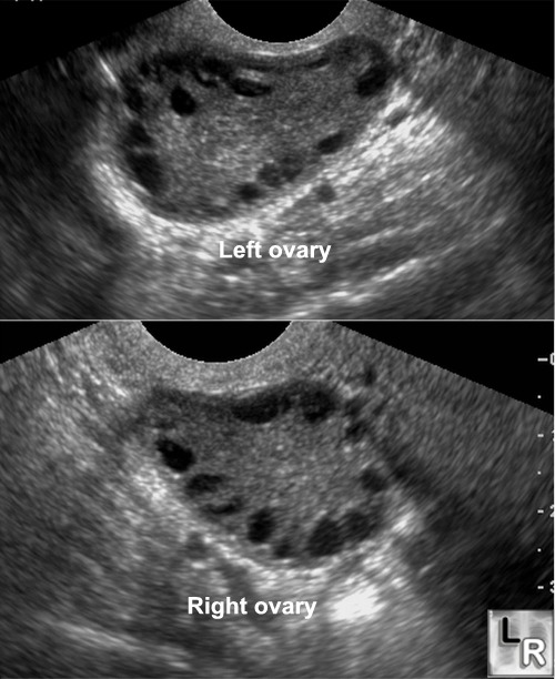 Polycystic Ovarian Syndrome (Stein-Leventhal Ovaries). Both the right ...