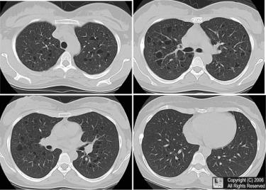 longen ontgiften