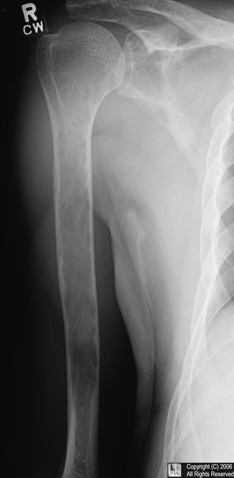 Multiple myeloma-humerus