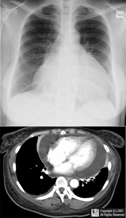 Pericardial Effusion On Chest X-ray
