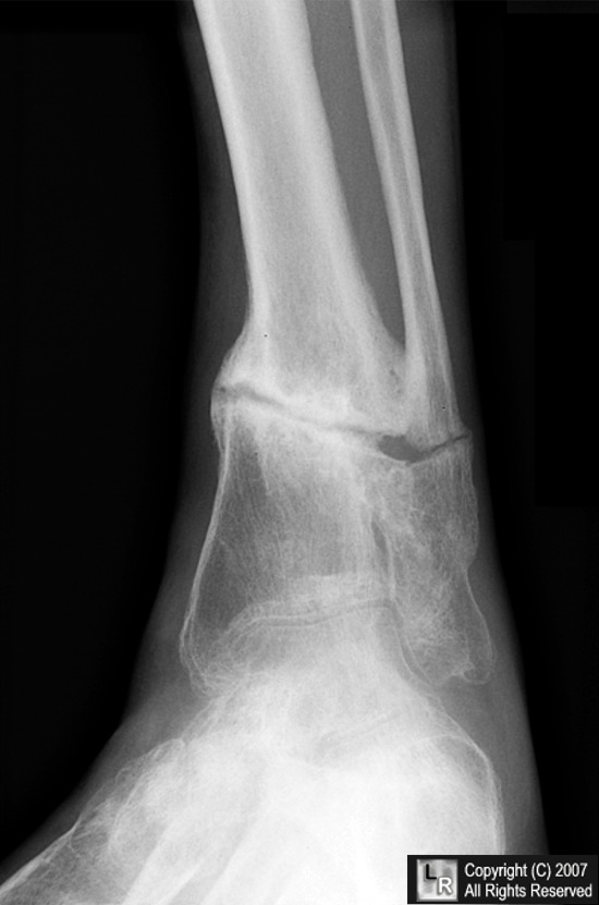 learning radiology - non-union, nonunion, fracture, delayed, union, Muscles