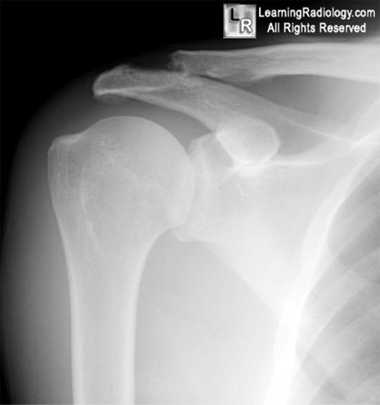 triggers for rheumatoid arthritis flare