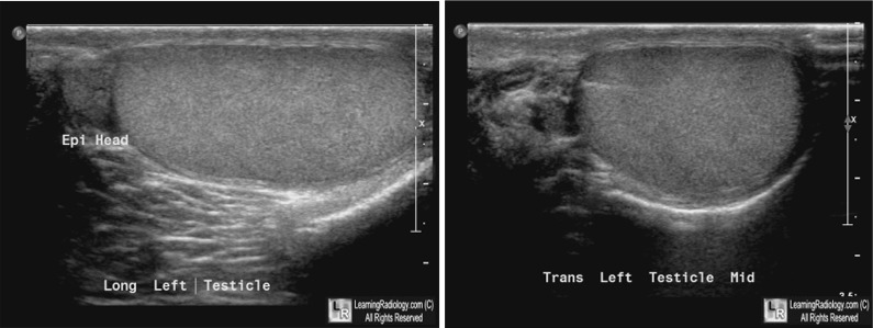 For these same photos without the arrows  click here and hereScrotal Cyst Ultrasound