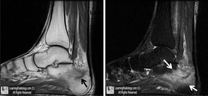 MRI calcaneal stress fracture