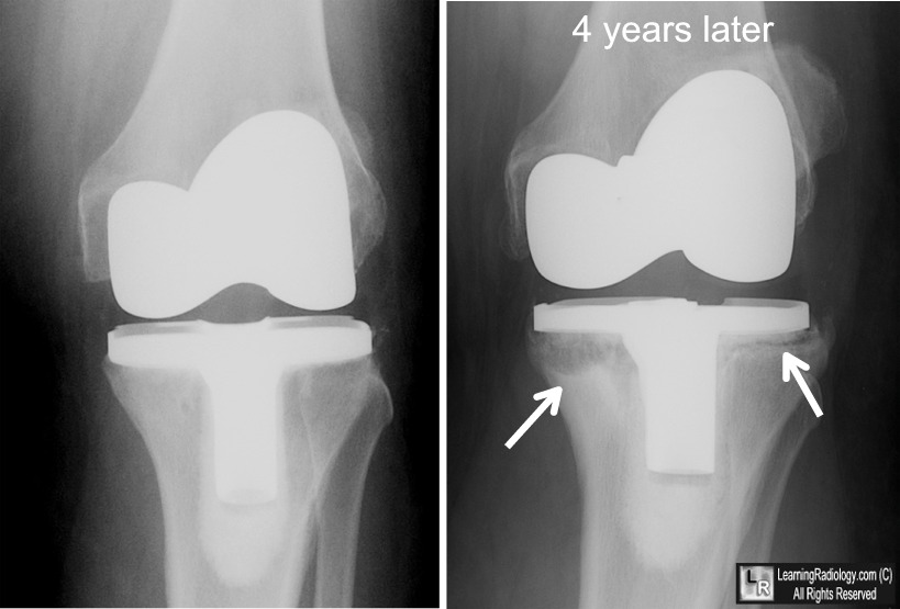 transtibial prothesis cost For example, in the transtibial (below-knee) prosthesis, pressure is increased by removing material at the following areas: patella tendon, pretibial muscles, flare of.