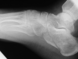 Fx calcaneous-jumper