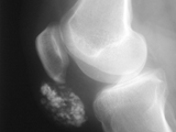 Pre-patellar bursitis-Housemaids knee