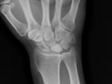 Keinboch's osteomalacia