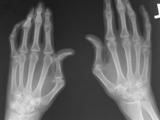 Lupus-hands