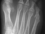 Psoriasis-Foot