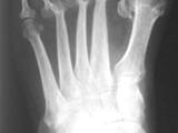 RA-foot