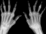 Rheumatoid arthritis-both hands