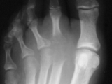 Septic arthritis-foot