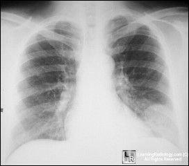 Pulmonary infarct
