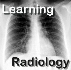LearningRadiology Video Podcasts