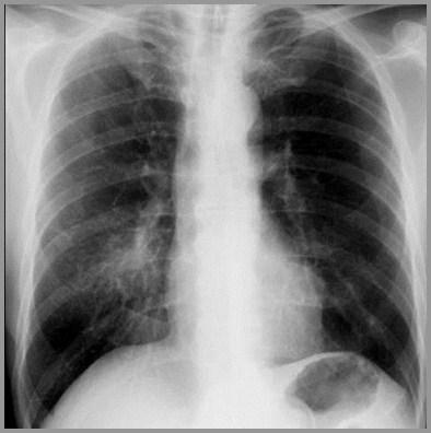 walking pneumonia - photo #27