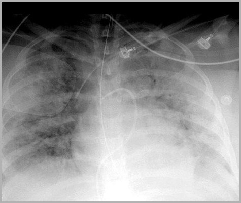 ICU Tubes and Lines-2012