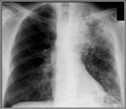Как лечить klebsiella pneumoniae во влагалище
