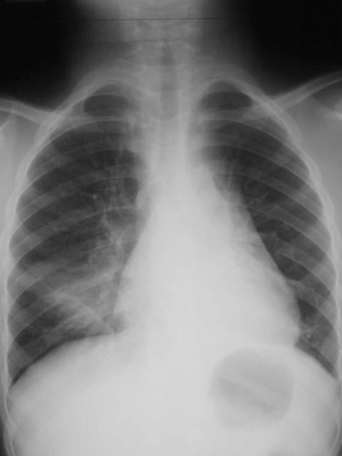 Basic chest x ray interpretation learningradiology update news