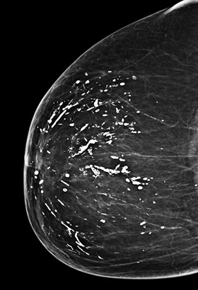 Excellent answer, images of segmental breast calcifications are not