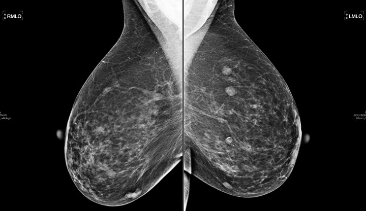 This images of segmental breast calcifications consider