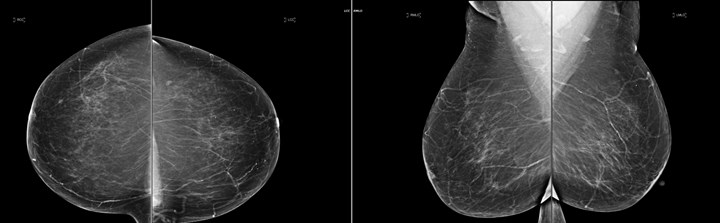 Still images of segmental breast calcifications remarkable