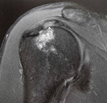 arthritis arthrogram joint x ray