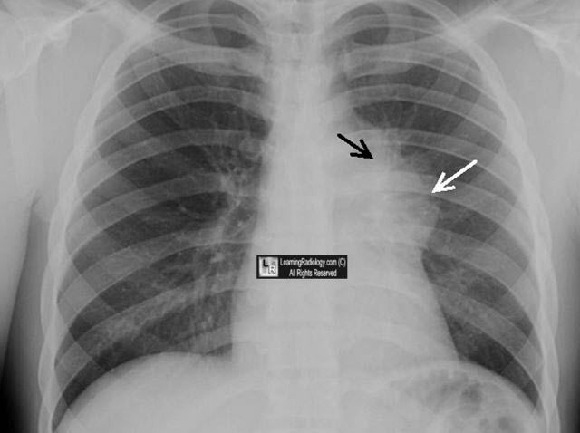 Chest X-ray Lung Hilum